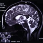 45 Millionen medizinische Bilder weltweit im ungeschützten Online-Zugriff