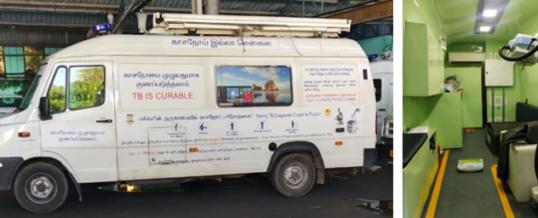 NTT DATA bietet mit Künstlicher Intelligenz mobile Diagnose für Tuberkulose für 100.000 Menschen in Indien